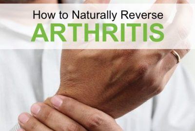 How to Naturally Reverse Arthritis