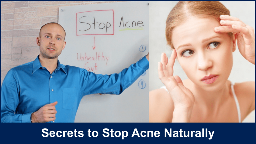 Stop Acne Naturally
