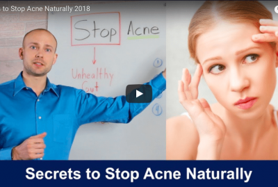 [VIDEO] Secrets to Stop Acne Naturally