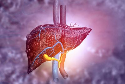 How to Reverse a Fatty Liver With Diet