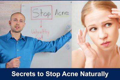 Secrets to Stop Acne Naturally