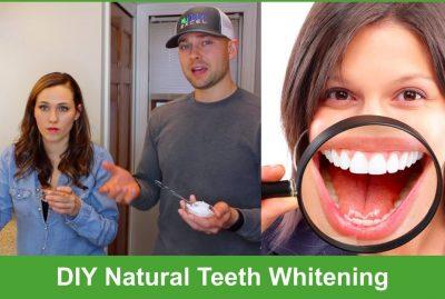 DIY Natural Teeth Whitening